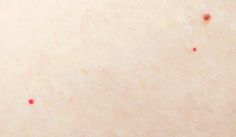 に 赤い ない 腕 斑点 かゆく