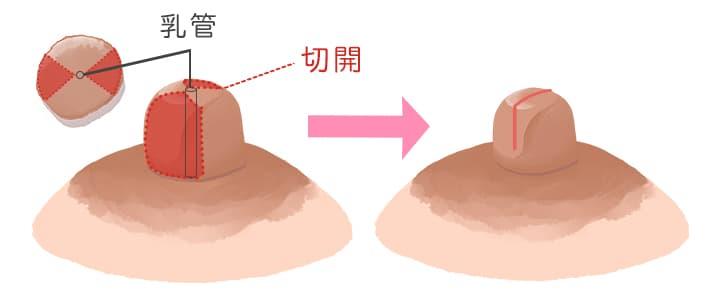 かゆい モントゴメリー腺 乳首がかゆい8つの原因は?乳がんの初期症状って本当?病気の可能性や症状について!